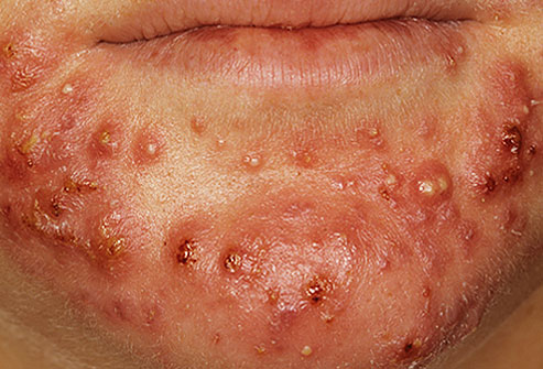 Picture of severe acne