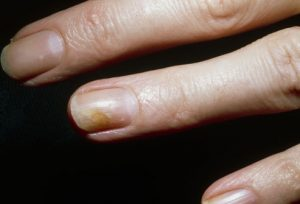 Ringworm of fingernail