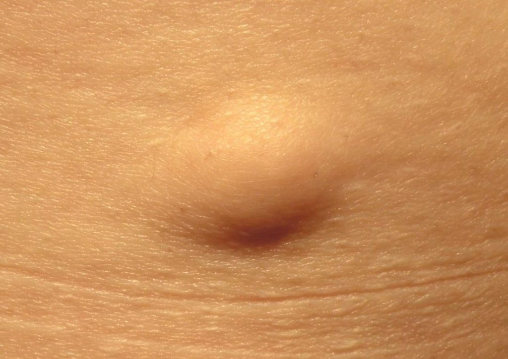 Lipoma causes, symptoms, diagnosis, treatment and management
