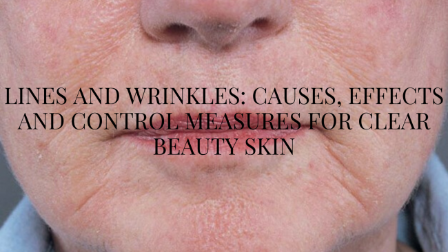 Lines and Wrinkles: Causes, Effects and Control Measures for Clear Beauty Skin