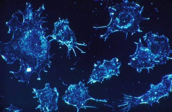 Practical Ways To Boost Your Immune System Against Cancer